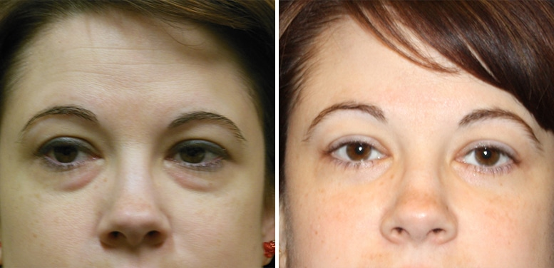 Bleph-15-after_01 Eyelid Surgery in Scottsdale