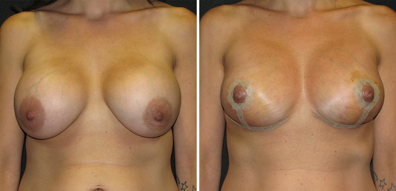 Breast-Revision-18-After_01 Breast Implant Revision In Scottsdale