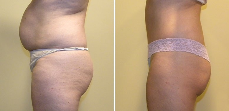Abdominoplasty-after-13_01-min Tummy Tuck in Scottsdale
