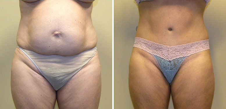 Abdominoplasty-after-14_01-min Tummy Tuck in Scottsdale