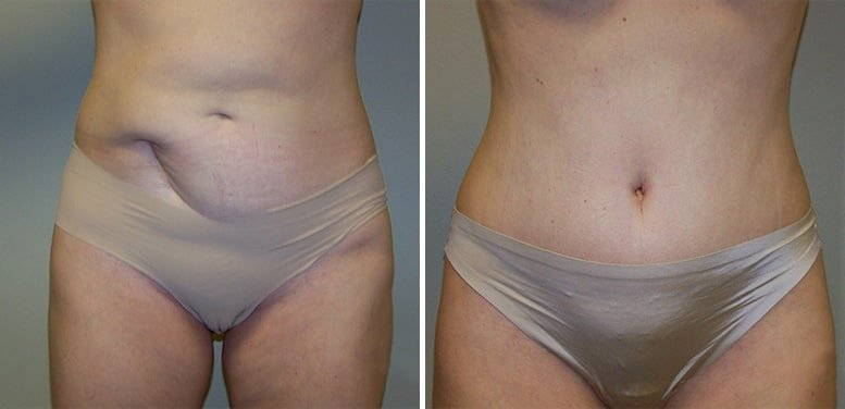 Abdominoplasty-after-15_01-min Tummy Tuck in Scottsdale