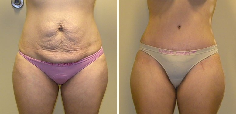 Abdominoplasty-after10_01-min Tummy Tuck in Scottsdale