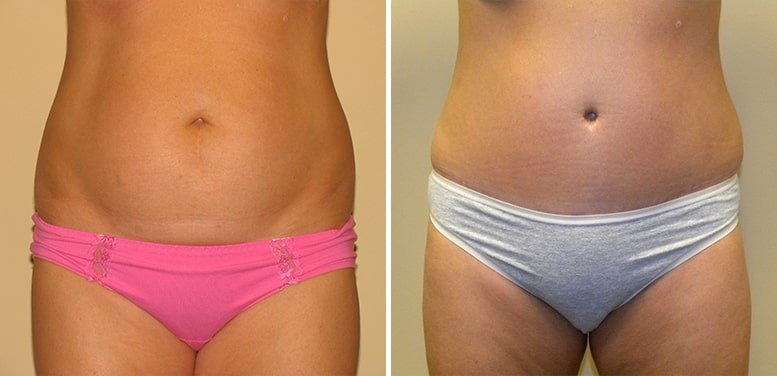 Abdominoplasty-after11_01-min Tummy Tuck in Scottsdale