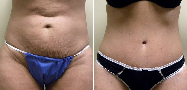 Abdominoplasty-after12_01-min Tummy Tuck in Scottsdale