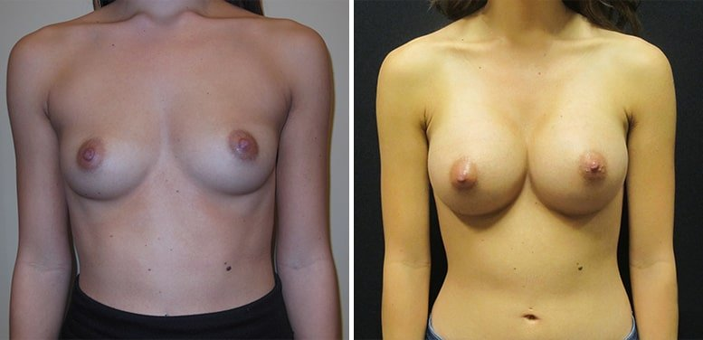 Breast-Aug-10-after_01-min Breast Augmentation In Scottsdale