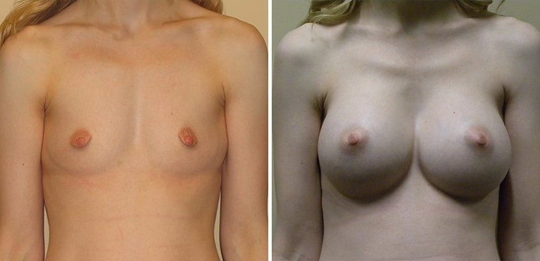 Breast-Aug-11-after_01-min Breast Augmentation In Scottsdale