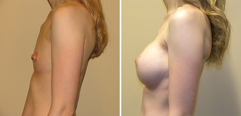 Breast-Aug-12-after_01-min Breast Augmentation In Scottsdale