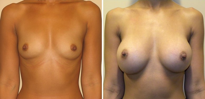 Breast-Aug-13-after_01-min Breast Augmentation In Scottsdale