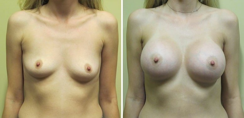 Breast-Aug-14-after_01-min Breast Augmentation In Scottsdale