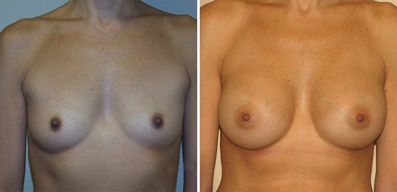Breast-Aug-15-after_01-min Breast Augmentation In Scottsdale