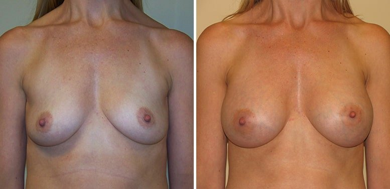 Breast-Aug-16-after_01-min Breast Augmentation In Scottsdale