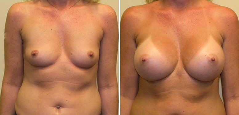 Breast-Aug-17-after_01-min Breast Augmentation In Scottsdale