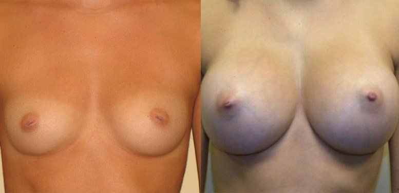 Breast-Aug-18-after_01-min Breast Augmentation In Scottsdale