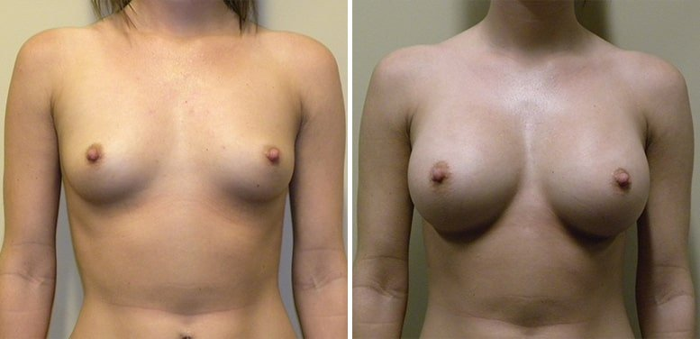 Breast-Aug-19-after_01-min Breast Augmentation In Scottsdale