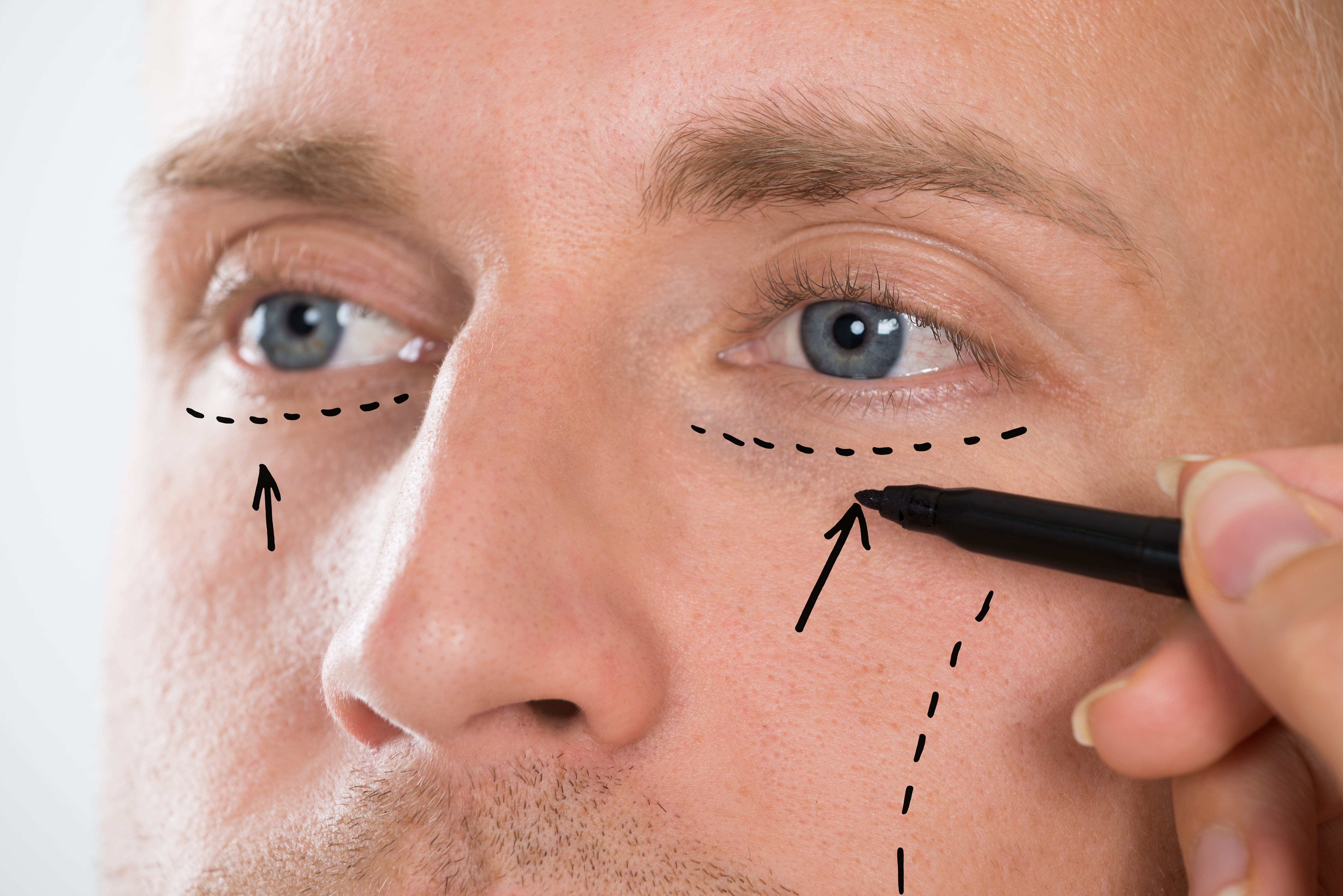 face-lift-min-1 Eyelid Surgery for Men in Scottsdale
