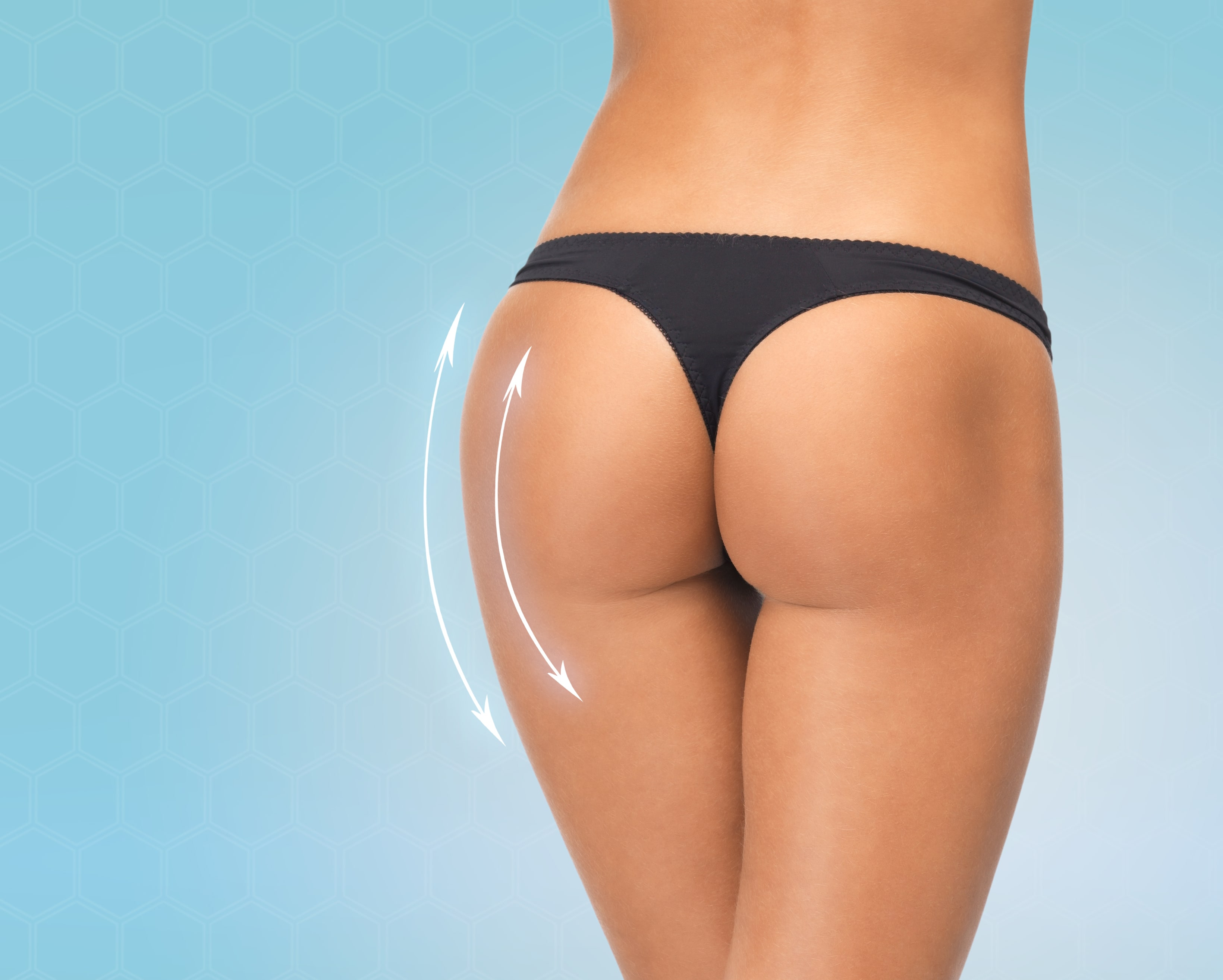 liposuction-min Body Contouring In Scottsdale