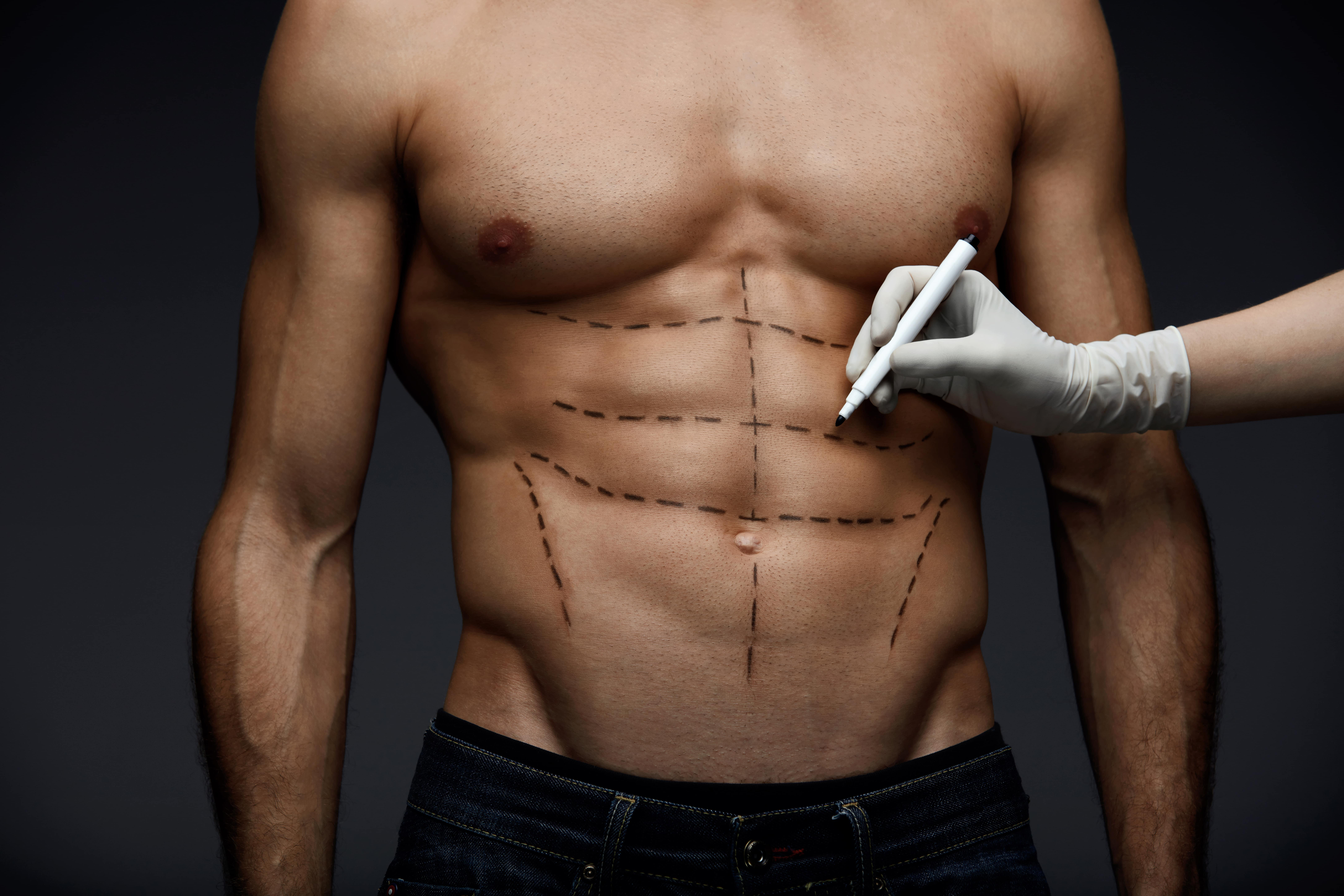 surgical-min Cosmetic Procedures for Men In Scottsdale