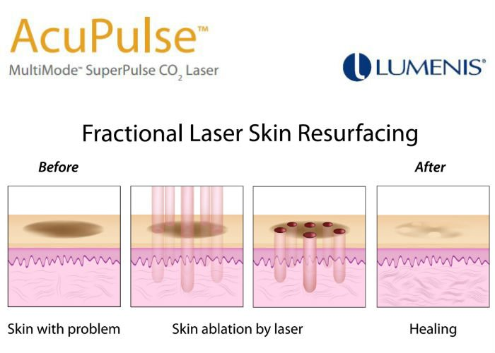 Acupulse-Lumenis-Fractional-laser-skin-resurfacing Acupulse CO2 in Scottsdale