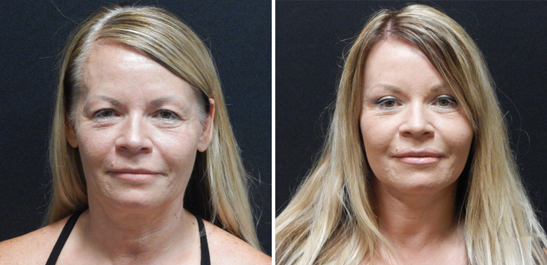 Bleph-10-after-01 Eyelid Surgery in Scottsdale