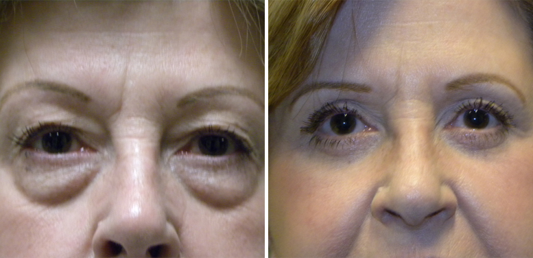 Bleph-11-after-01 Eyelid Surgery in Scottsdale