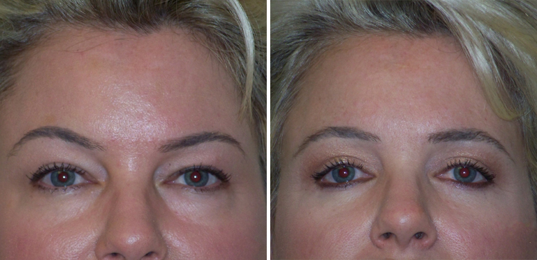 Bleph-12-after-01 Eyelid Surgery in Scottsdale