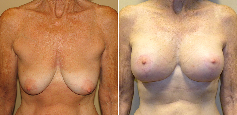 Breast-Lift-10-After_01 Breast Lift In Scottsdale