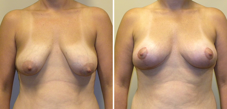 Breast-Lift-11-After_01 Breast Lift In Scottsdale