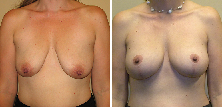 Breast-Lift-12-After_01 Breast Lift In Scottsdale