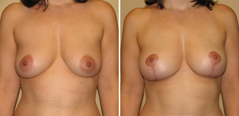 Breast-Lift-14-After_01 Breast Lift In Scottsdale
