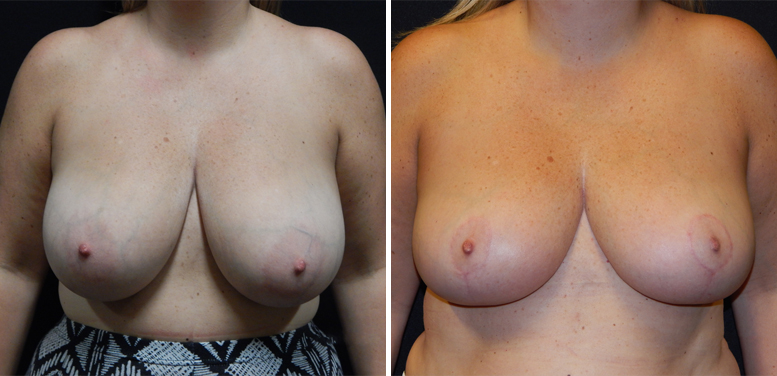 Breast-Reduction-10-after-01 Breast Reduction In Scottsdale