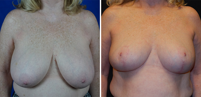 Breast-Reduction-11-after-01 Breast Reduction In Scottsdale