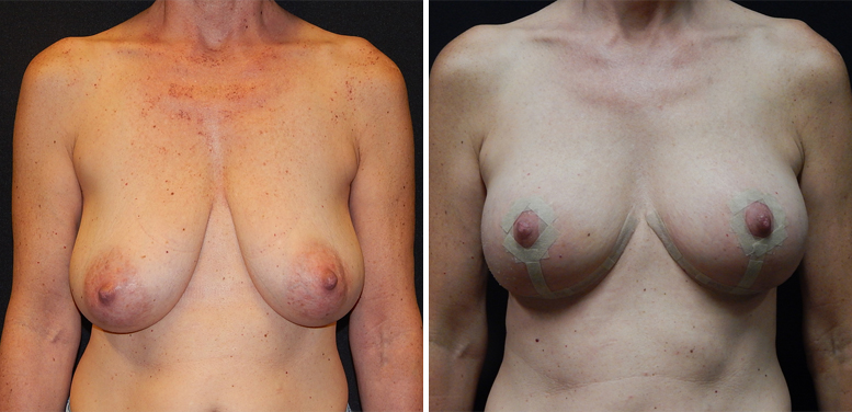 Breast-Reduction-12-after-01 Breast Reduction In Scottsdale