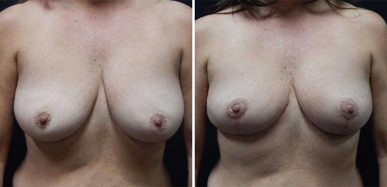 Breast-Reduction-13-after-01 Breast Reduction In Scottsdale