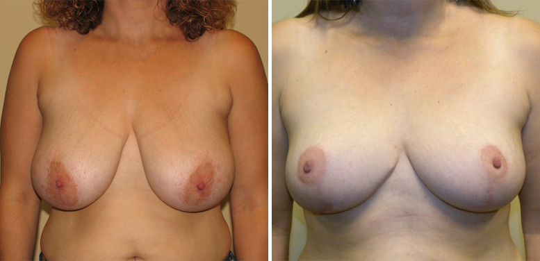 Breast-Reduction-14-after-01 Breast Reduction In Scottsdale