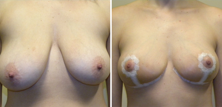 Breast-Reduction-15-after-01 Breast Reduction In Scottsdale