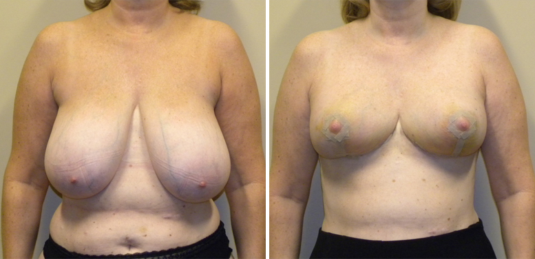Breast-Reduction-16-after-01 Breast Reduction In Scottsdale