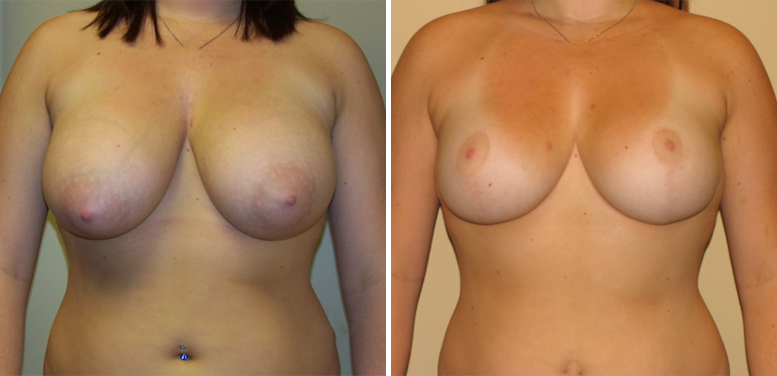 Breast-Reduction-17-after-01 Breast Reduction In Scottsdale
