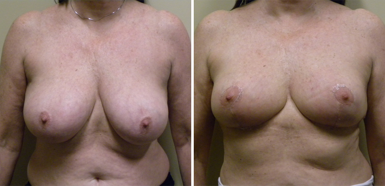 Breast-Reduction-18-after-01 Breast Reduction In Scottsdale