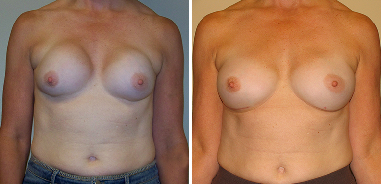 Breast-Revdion-10-After_01 Breast Implant Revision In Scottsdale