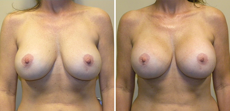 Breast-Revision-12-After_01 Breast Implant Revision In Scottsdale