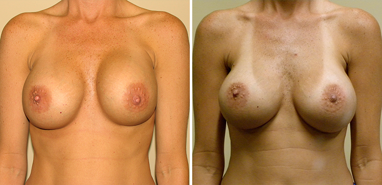 Breast-Revision-17-After_01 Breast Implant Revision In Scottsdale