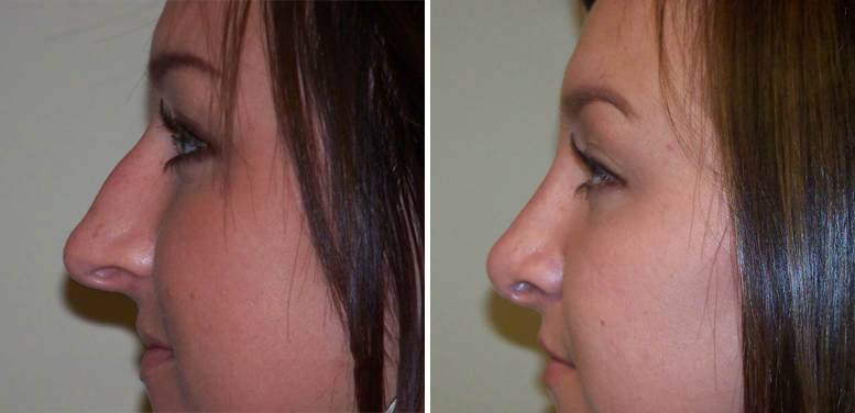 Rhinoplasty-10-after-01 Rhinoplasty in Scottsdale