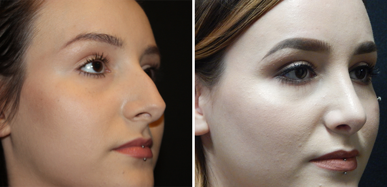 Rhinoplasty-12-after-01 Rhinoplasty in Scottsdale