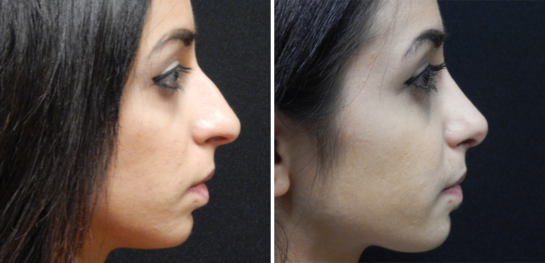 Rhinoplasty-13-after-01 Rhinoplasty in Scottsdale