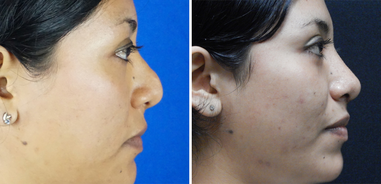 Rhinoplasty-14-after-01 Rhinoplasty in Scottsdale