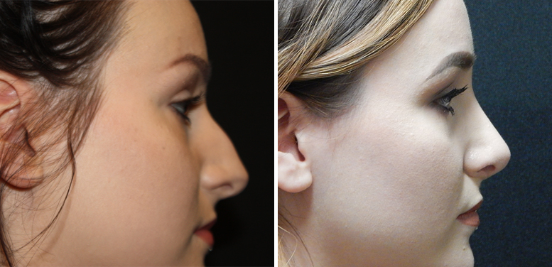 Rhinoplasty-15-after-01 Rhinoplasty in Scottsdale