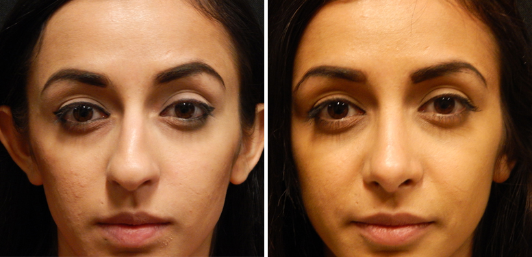 Rhinoplasty-16-after-01 Rhinoplasty in Scottsdale