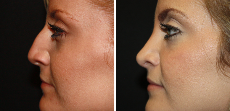 Rhinoplasty-17-after-01 Rhinoplasty in Scottsdale