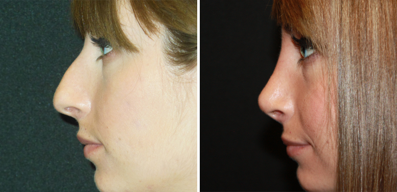 Rhinoplasty-18-after-01 Rhinoplasty in Scottsdale