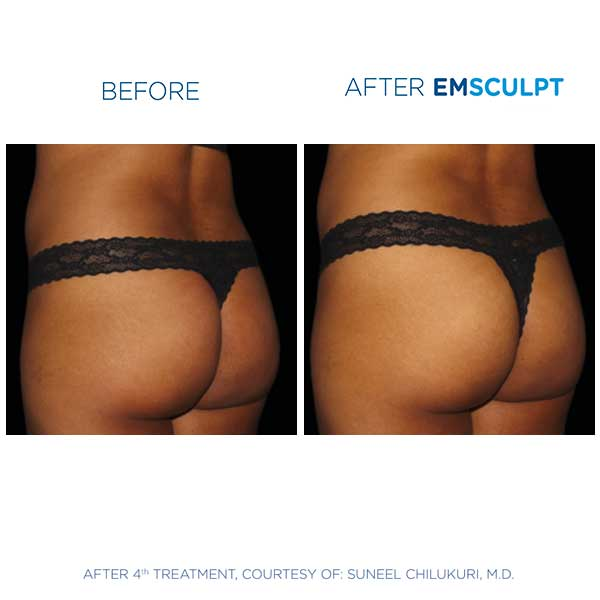 emsculpt-before-after2 EMSculpt in Scottsdale